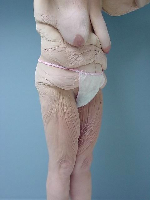 Older grannies and matures showing their wrinkled bodies - part 776
